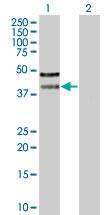 Western blot - PSRC2 antibody (ab67231)