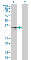 Western blot - TRAM1 antibody (ab67233)