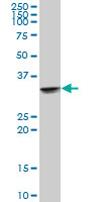 Western blot - UCP2 antibody (ab67241)
