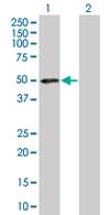Western blot - PRR11 antibody (ab67244)