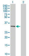 Western blot - MRPL1 antibody (ab67245)