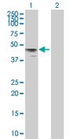 Western blot - HYAL3 antibody (ab67248)