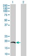 Western blot - IL17 antibody (ab67250)