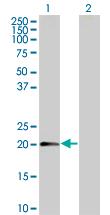 Western blot - MTP18 antibody (ab67254)