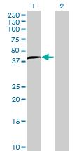 Western blot - OVOL2 antibody (ab67255)