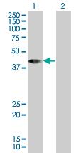 Western blot - RBED1 antibody (ab67256)