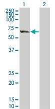 Western blot - GBP5 antibody (ab67257)