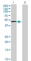 Western blot - RPIP8 antibody (ab67259)