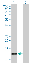 Western blot - Eotaxin 3 antibody (ab67260)
