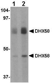 Western blot - DHX58 antibody (ab67272)