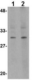 Western blot - RASD2 antibody (ab67276)