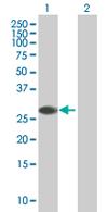 Western blot - ZNF434 antibody (ab67291)