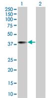 Western blot - TSNAXIP1 antibody (ab67295)