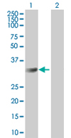 Western blot - CMTM2 antibody (ab67322)