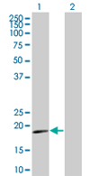 Western blot - IFNA16 antibody (ab67328)
