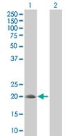 Western blot - SNX24 antibody (ab67329)