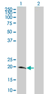 Western blot - NME6 antibody (ab67331)