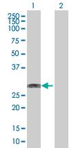 Western blot - WBP2NL antibody (ab67338)