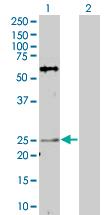 Western blot - AKIP antibody (ab67343)