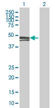 Western blot - PAK1 interacting protein 1 antibody (ab67348)