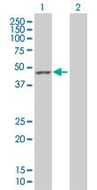 Western blot - Mannose Phosphate Isomerase antibody (ab67357)