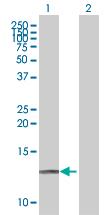 Western blot - SAA4 antibody (ab67358)