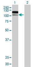 Western blot - IL12RB2 antibody (ab67365)
