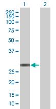 Western blot - TMED1 antibody (ab67366)