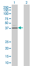 Western blot - Protein C inhibitor antibody (ab67368)