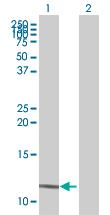 Western blot - ARL9 antibody (ab67370)