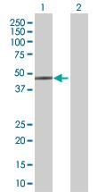 Western blot - MVK antibody (ab67373)