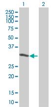 Western blot - UTP11L antibody (ab67374)