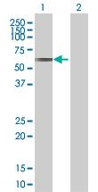 Western blot - CLUL1 antibody (ab67378)