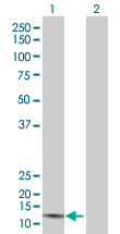 Western blot - CMTM1 antibody (ab67382)