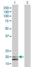 Western blot - IFNA4 antibody (ab67385)