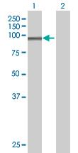 Western blot - SLC26A2 antibody (ab67386)