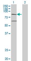 Western blot - MX2 antibody (ab67388)