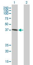 Western blot - GALE antibody (ab67389)
