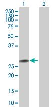 Western blot - PPP2R3B antibody (ab67390)