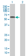 Western blot - SASS6 antibody (ab67395)