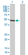 Western blot - ACTR10 antibody (ab67397)