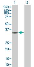 Western blot - NPM2 antibody (ab67403)