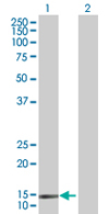 Western blot - SH2D1B antibody (ab67417)