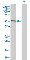 Western blot - POLE antibody (ab67420)