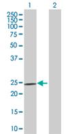 Western blot - VASH1 antibody (ab67423)