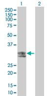 Western blot - HLA DOB antibody (ab67424)