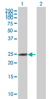 Western blot - LOC134147 antibody (ab67426)