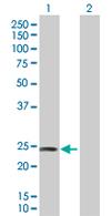 Western blot - DIRAS2 antibody (ab67430)