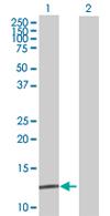 Western blot - COX7A2L antibody (ab67433)