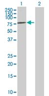 Western blot - IGF2BP2 antibody (ab67434)